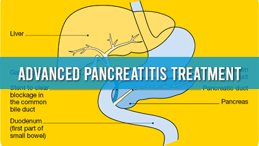 Peers Alley Media: Advanced Pancreatitis Treatment