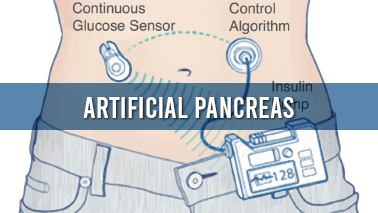 Peers Alley Media: Artificial Pancreas