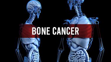 Peers Alley Media: Bone Cancer