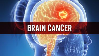 Peers Alley Media: Brain Cancer