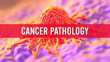 Peers Alley Media: Cancer Pathology