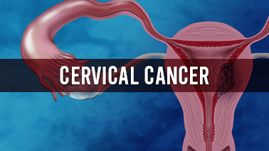 Peers Alley Media: Cervical Cancer