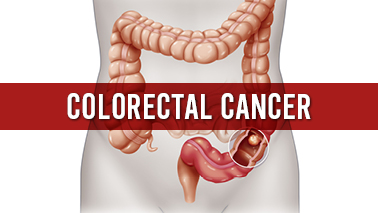 Peers Alley Media: Colorectal Cancer