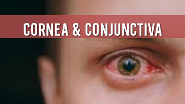 Peers Alley Media: Cornea  Conjunctiva