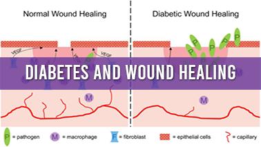 Peers Alley Media: Diabetes and Wound Healing