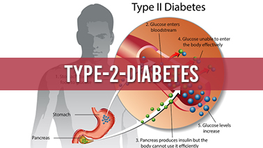 Peers Alley Media: Diabetes mellitus type 2