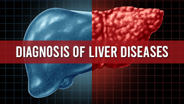 Peers Alley Media: Diagnosis of Liver Diseases