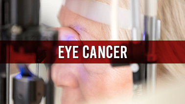 Peers Alley Media: Eye Cancer