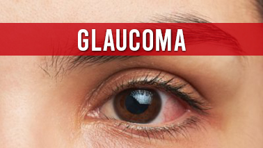 Peers Alley Media: Glaucoma