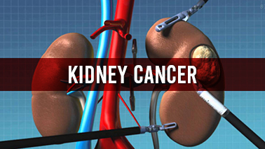 Peers Alley Media: Kidney Cancer