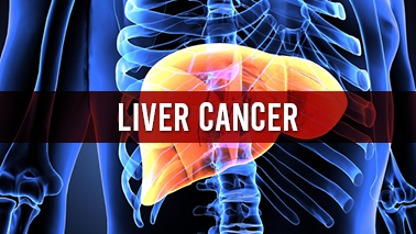 Peers Alley Media: Liver Cancer