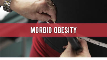 Peers Alley Media: Morbid Obesity