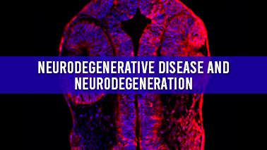 Peers Alley Media: Neurodegenerative disease and Neurodegeneration
