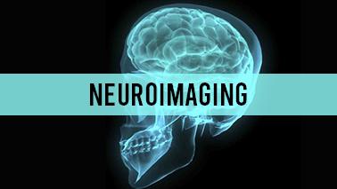 Peers Alley Media: Neuroimaging