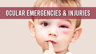 Peers Alley Media: Ocular Emergencies  Injuries