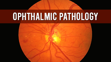 Peers Alley Media: Ophthalmic Pathology