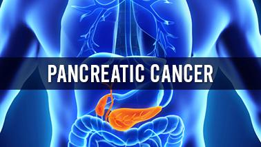 Peers Alley Media: Pancreatic Cancer