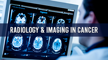 Peers Alley Media: Radiology and Imaging in Cancer