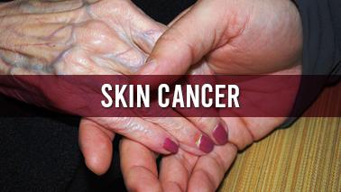 Peers Alley Media: Skin Cancer