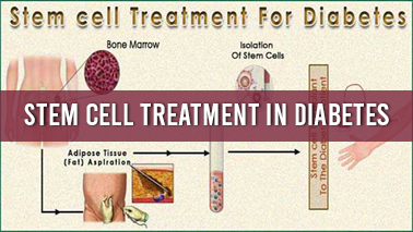 Peers Alley Media: Stem Cell treatment in Diabetes
