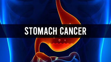 Peers Alley Media: Stomach Cancer