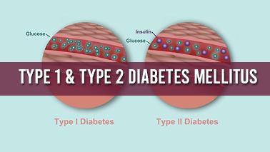 Peers Alley Media: Type 1  Type 2 Diabetes Mellitus