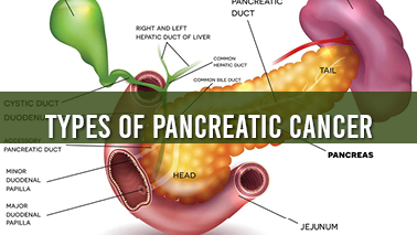 Peers Alley Media: Types of Pancreatic Cancer