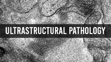 Peers Alley Media: Ultra Structural Pathology